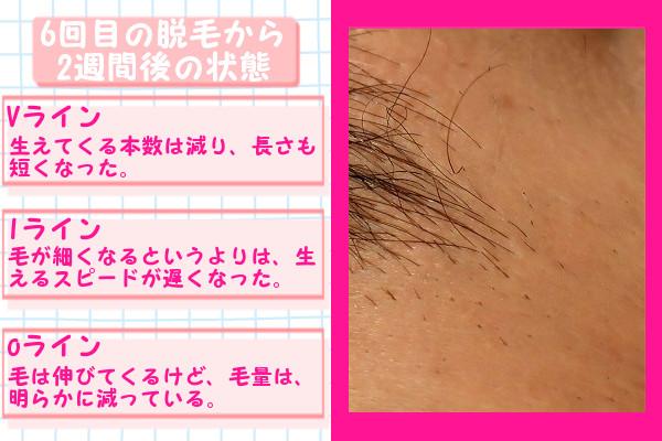 脱毛器ケノンでVIO6回目の脱毛から2週間後の脱毛の状態
