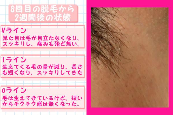 脱毛器ケノンでVIO8回目の脱毛から2週間後の脱毛の状態
