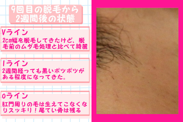 脱毛器ケノンでVIO9回目の脱毛から2週間後の脱毛の状態