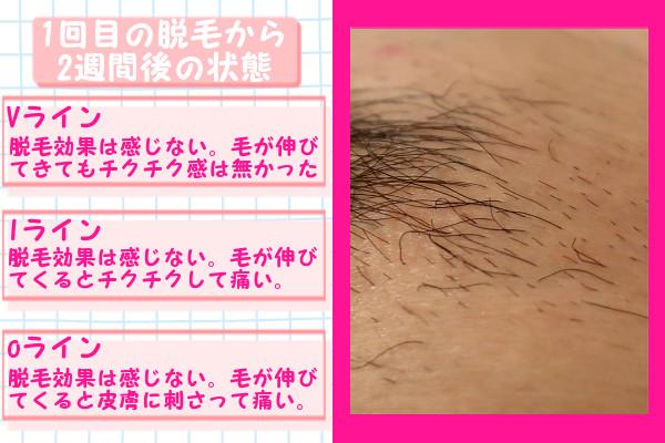脱毛器ケノンでVIO1回目の脱毛から2週間後の脱毛の状態