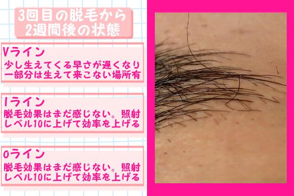 脱毛器ケノンでVIO3回目の脱毛から2週間後の脱毛の状態