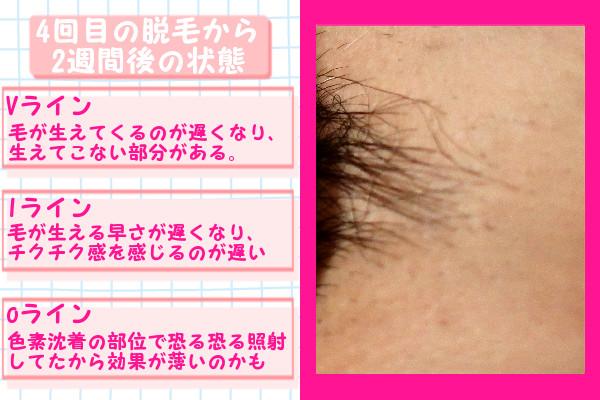 脱毛器ケノンでVIO4回目の脱毛から2週間後の脱毛の状態