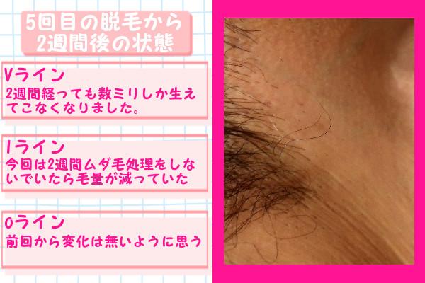 脱毛器ケノンでVIO5回目の脱毛から2週間後の脱毛の状態