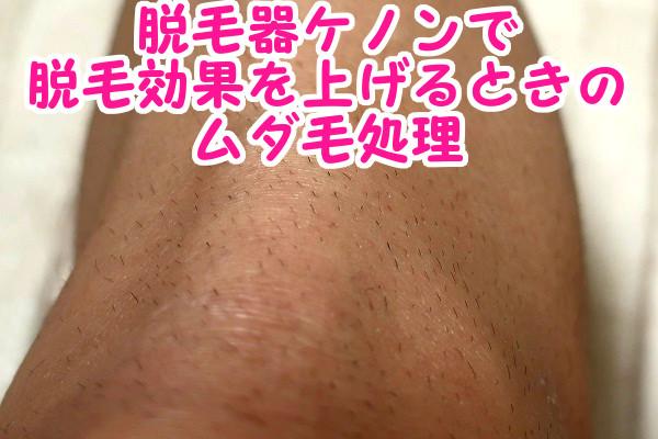 ムダ毛は剃ってからケノンを使うことが効果を上げるコツ