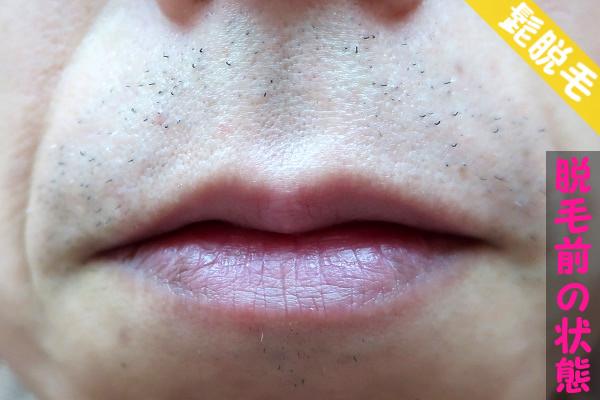 脱毛器ケノンで髭脱毛する前の鼻下・顎の状態