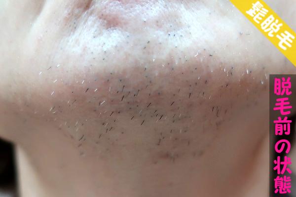 脱毛器ケノンで髭脱毛する前の顎下の状態