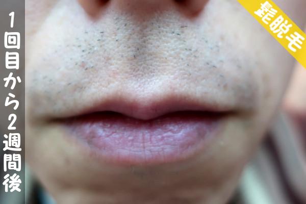 脱毛器ケノンで髭1回目の脱毛から2週間後の鼻下・顎の状態