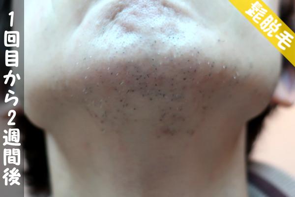 脱毛器ケノンで髭1回目の脱毛から2週間後の顎下の状態
