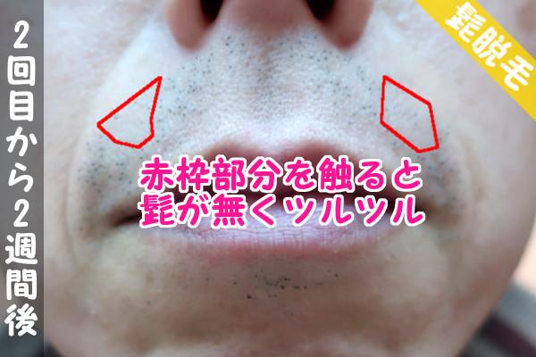脱毛器ケノンで髭2回目の脱毛から2週間後の鼻下・顎の状態