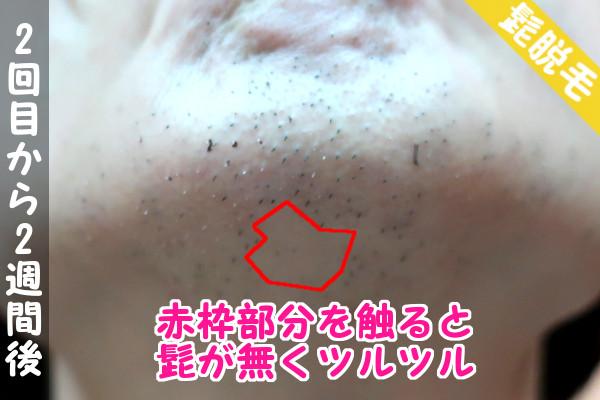 脱毛器ケノンで髭2回目の脱毛から2週間後の顎下の状態