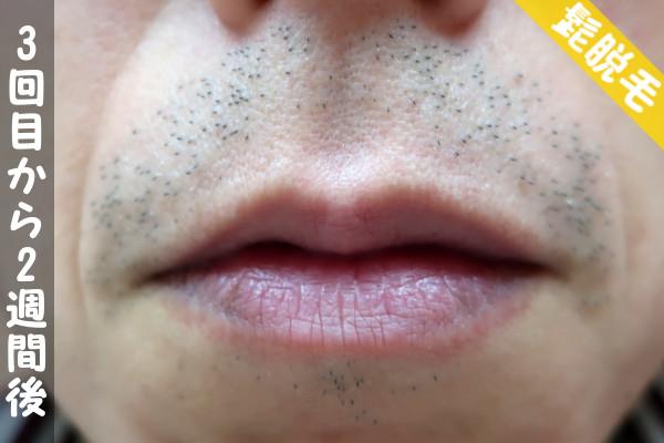 脱毛器ケノンで髭3回目の脱毛から2週間後の鼻下・顎の状態
