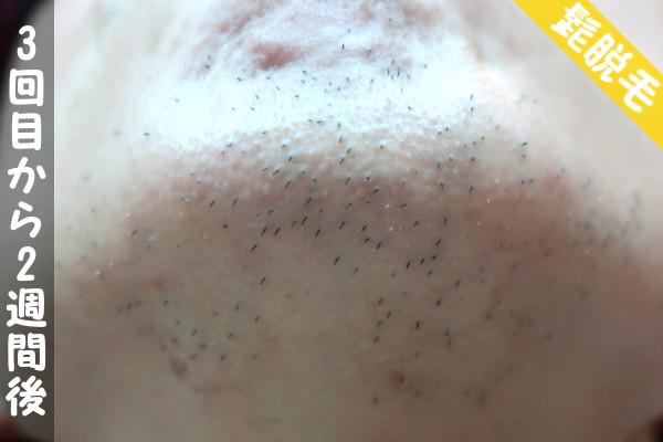 脱毛器ケノンで髭3回目の脱毛から2週間後の顎下の状態