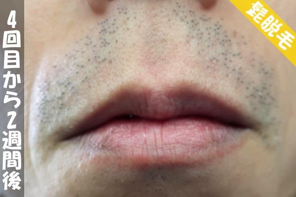 脱毛器ケノンで髭4回目の脱毛から2週間後の鼻下・顎の状態