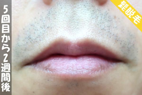 脱毛器ケノンで髭5回目の脱毛から2週間後の鼻下・顎の状態