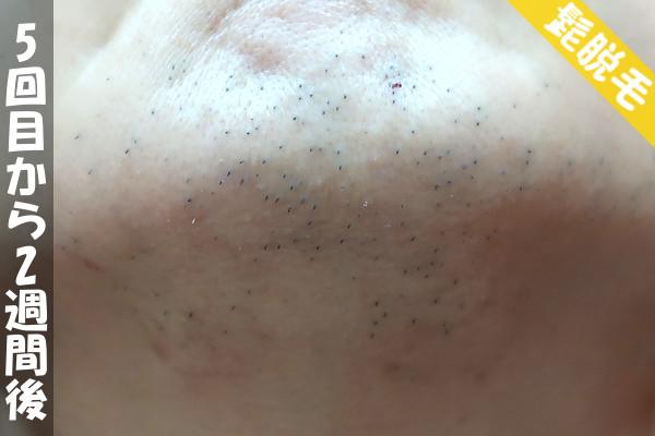 脱毛器ケノンで髭5回目の脱毛から2週間後の顎下の状態