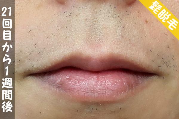 脱毛器ケノンで髭21回目の脱毛から1週間後の鼻下・顎の状態