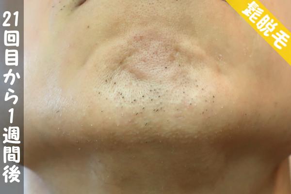 脱毛器ケノンで髭21回目の脱毛から1週間後の顎下の状態