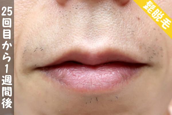 脱毛器ケノンで髭25回目の脱毛から1週間後の鼻下・顎の状態
