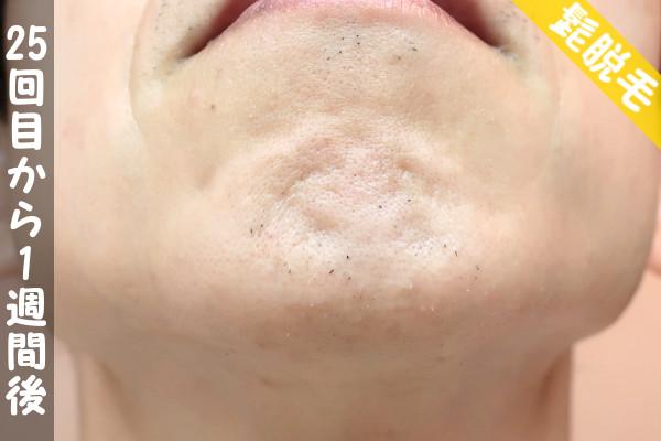 脱毛器ケノンで髭25回目の脱毛から1週間後の顎下の状態