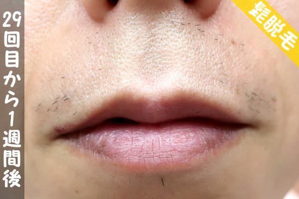脱毛器ケノンで髭29回目の脱毛から1週間後の鼻下・顎の状態