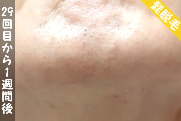 脱毛器ケノンで髭29回目の脱毛から1週間後の顎下の状態