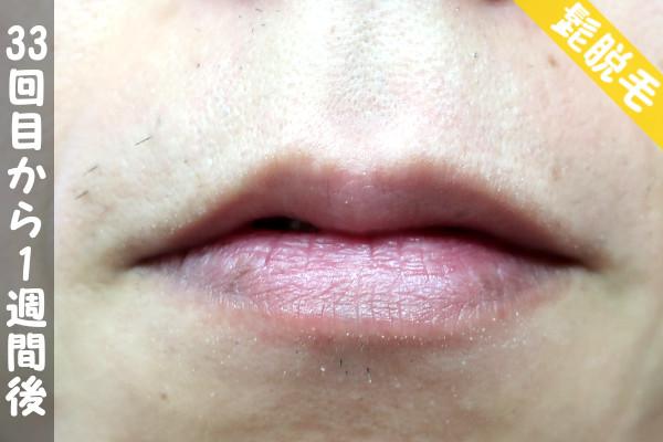 脱毛器ケノンで髭33回目の脱毛から1週間後の鼻下・顎の状態