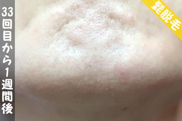 脱毛器ケノンで髭33回目の脱毛から1週間後の顎下の状態