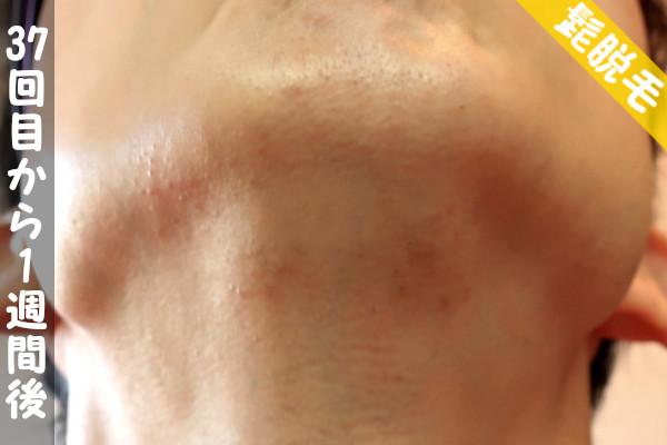 脱毛器ケノンで髭37回目の脱毛から1週間後の顎下の状態