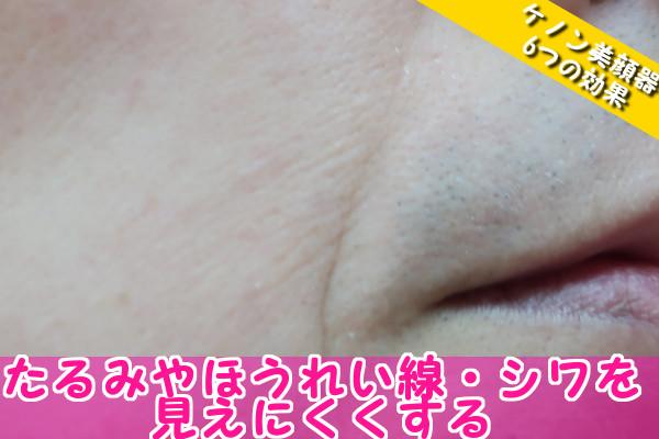 ケノン美顔器の6つの効果③たるみやほうれい線・シワを見えにくくする