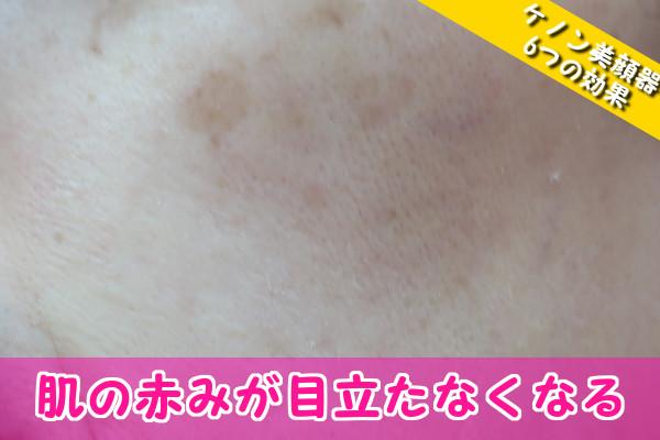 ケノン美顔器の6つの効果④肌の赤み(赤ら顔)が目立たなくなる