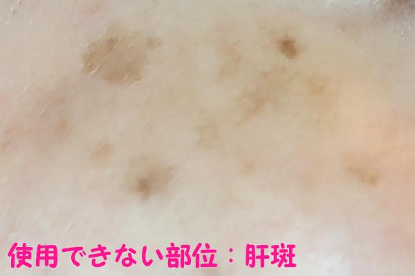 ケノン美顔器で使用できない部位:肝斑(かんぱん)