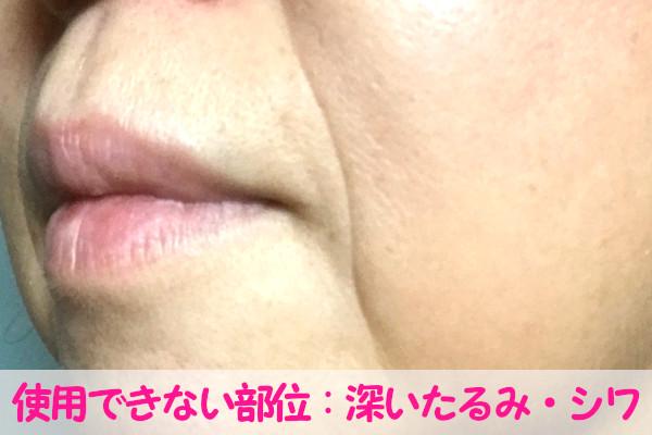 ケノン美顔器で使用できない部位:深いたるみやシワ・ほうれい線