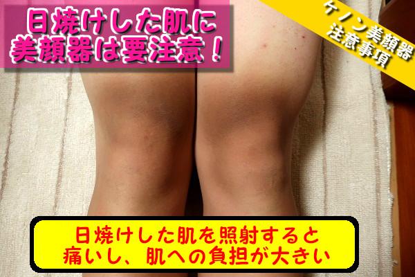 日焼けした肌にケノン美顔器を使うと強い痛みとさらに赤くなる可能性がある