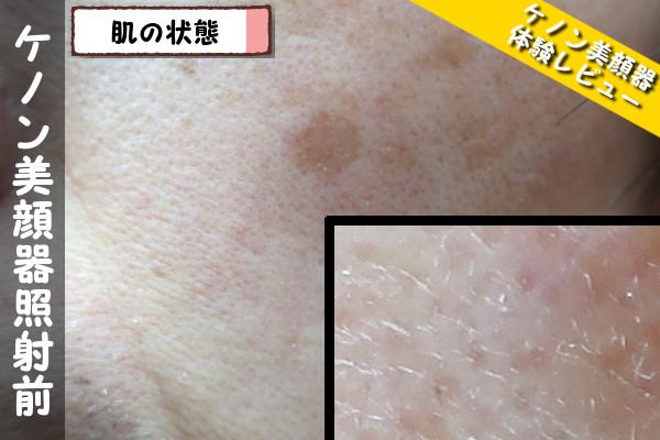 ケノン美顔器使用前の肌の状態