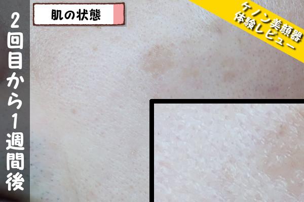 ケノン美顔器2回目使用から1週間後の肌の状態