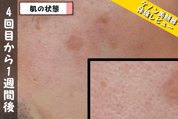ケノン美顔器4回目使用から1週間後の肌の状態