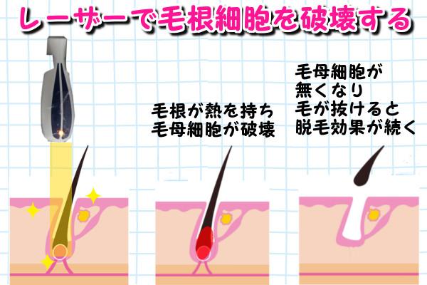 レーザー脱毛は光を当てて毛根に熱を持たせ毛母細胞を焼いて毛の再生ができないようにする方法
