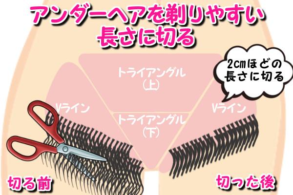 Vラインの毛の長さを剃りやすい長さ2cmに切る
