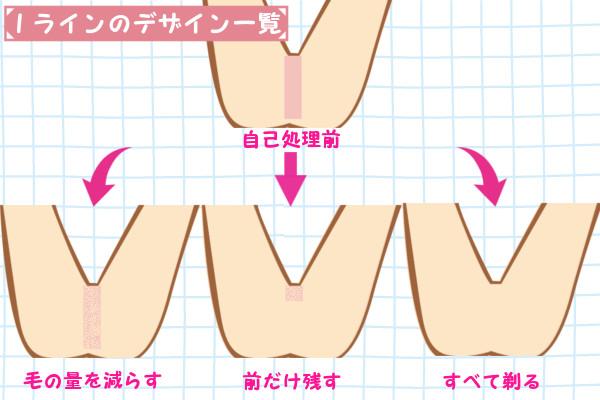 Iラインの毛の形・デザインは3つ