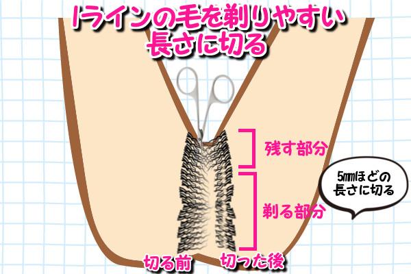 Iラインのムダ毛で剃る部分の長さを5mm程に剃る