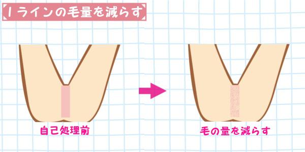 Iラインの自己処理|毛の量だけを減らす