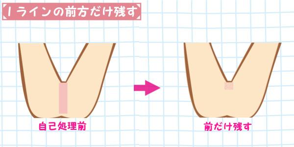 Iラインの自己処理|前方の毛だけを薄くして残す