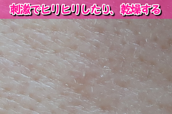 デリーモは薬剤を使っているから肌に刺激や乾燥させる