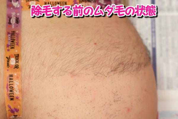 デリーモを使う前のムダ毛の状態
