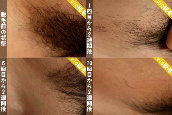 ケノンでvio脱毛の結果!脱毛前~1回目~5回目~10回目の写真
