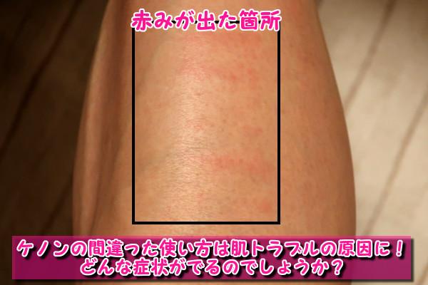 ケノンの間違った使い方をすると肌トラブルが起きる!火傷・赤み・乾燥・かゆみの原因に