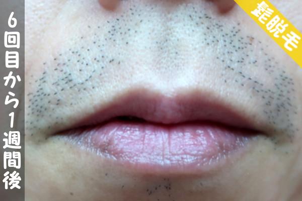 脱毛器ケノンで髭6回目の脱毛から1週間後の鼻下・顎の状態