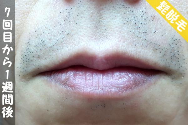 脱毛器ケノンで髭7回目の脱毛から1週間後の鼻下・顎の状態