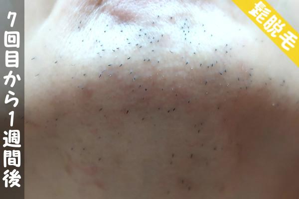 脱毛器ケノンで髭7回目の脱毛から1週間後の顎下の状態