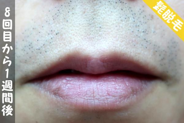 脱毛器ケノンで髭8回目の脱毛から1週間後の鼻下・顎の状態